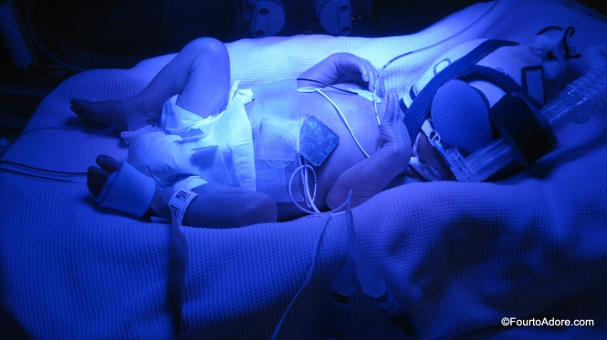 Our eyes adjusted to days of blue lights in our NICU room, helping to remove the billi from our babies' systems.